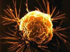 Polémica en Uruguay por conservación de células madres