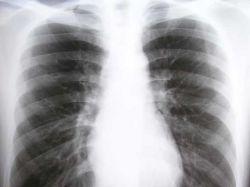 EPOC: una lucha por revertir los niveles de diagnóstico
