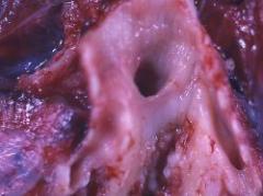 Más del 40% de los cánceres se pueden prevenir