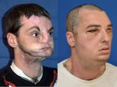 Realizan un revolucionario trasplante de cara en EEUU