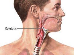Hasil gambar untuk epiglotitis