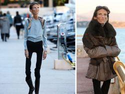 La tragedia de la mujer más delgada del mundo