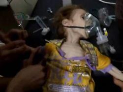 Siria: fotos horripilantes de niños que mueren de hambre