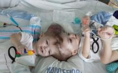 Exitosa operación a dos siameses unidos por la cabeza