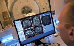 Neuronas ayudan al desarrollo del cáncer en el cuerpo