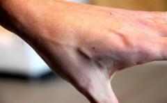 Empresa belga implanta chips a sus trabajadores