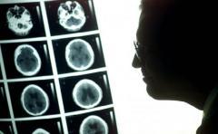 OMS dice que cáncer infantil aumentó 13% en 20 años