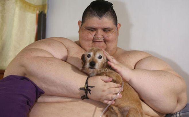 Operarán al hombre más obeso del mundo