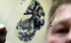 Médicos prueban estimulador electrónico para disminuir crisis epilépticas