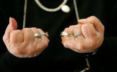 Diagnóstico temprano y tratamiento, claves para frenar efectos de la artritis