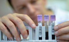 Conmemoran Día Mundial de la Hepatitis con tests gratuitos