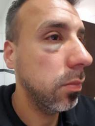 Uno de los jueces agredidos en el incidente.