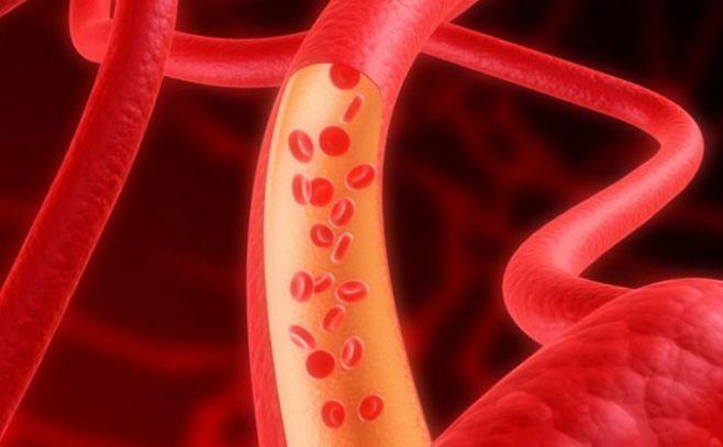 Día Mundial de la Trombosis: una dolencia que puede derivar en enfermedades graves