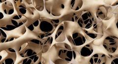 Positivo acceso a diagnóstico precoz para prevenir la osteoporosis