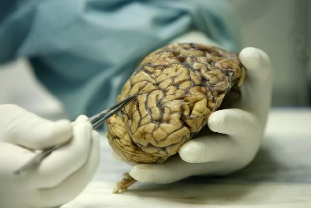 Gestación y juventud, momentos del desarrollo cerebral que nos hacen humanos